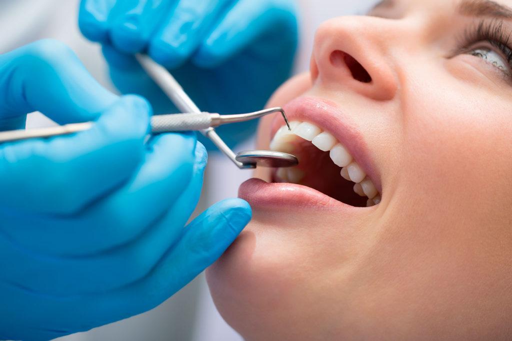 blanqueamiento dental en bilbao